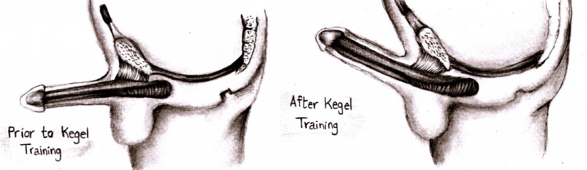 KEGEL-EXERCISES-HOW-TO-DO-KEGEL-EXERCISES-FOR-MEN